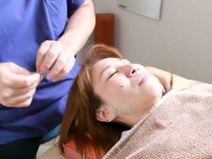 美容鍼の様子